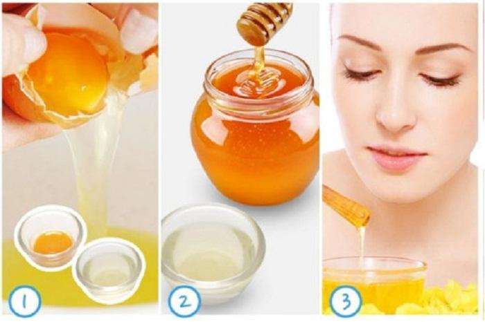10 cách loại bỏ mụn đầu đen vùng mũi nhanh và hiệu quả 7