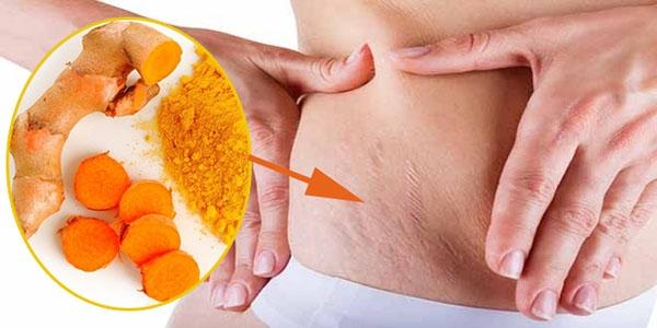 10 bí quyết thần thánh chữa rạn da bằng nguyên liệu thiên nhiên hiệu quả nhất 9